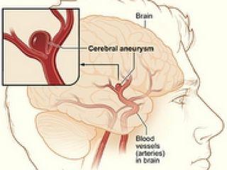 Medicina da hypostases di gambe a varicosity
